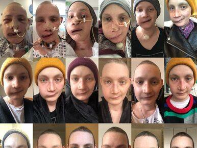 Niesamowita przemiana kobiety po operacji usunięcia guza. Jak wygląda...
