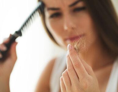 Wypadanie włosów – 5 prawdopodobnych przyczyn