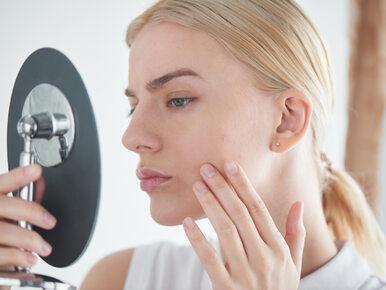 Obrzęk twarzy – 7 najczęstszych przyczyn