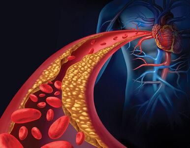 Jak poprawić krążenie krwi?