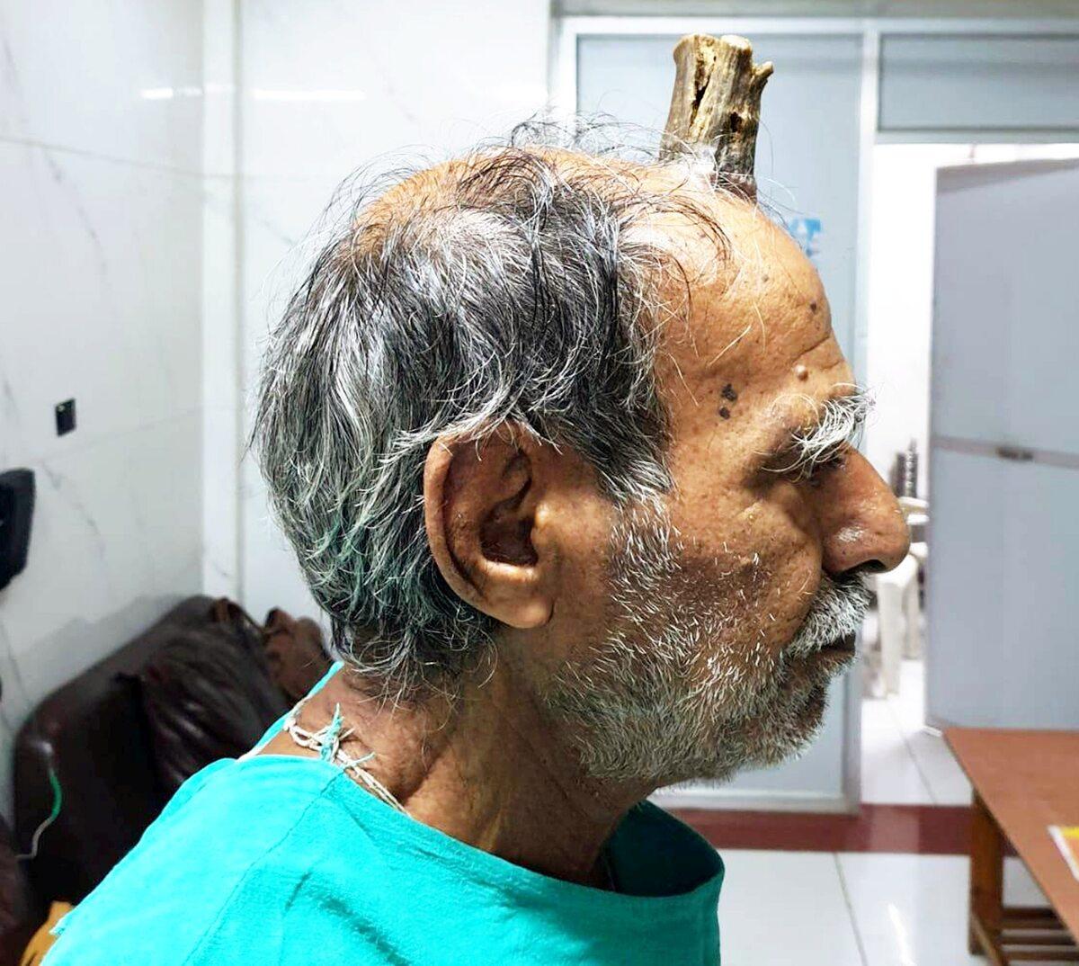 Hindus Shyam Lal Yadav miał na głowie 10 cm róg