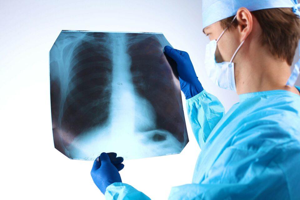 Postęp w Onkologii
